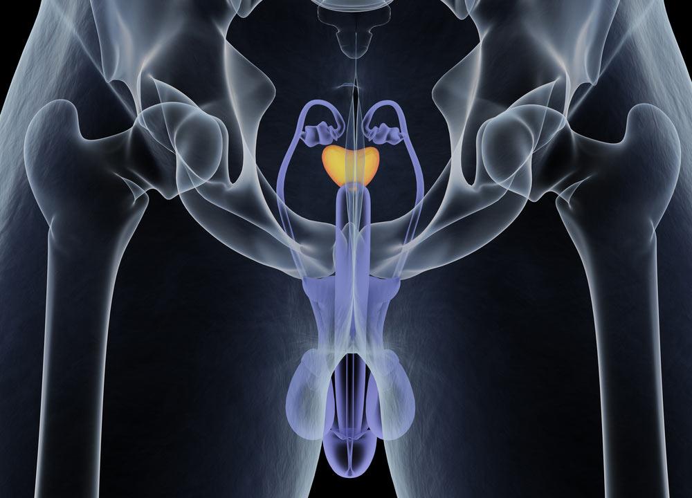 prostatite+e+sperma+giallo